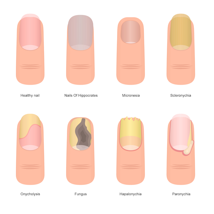 nail health and nutrition